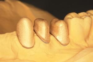 Galvanisch erzeugte Goldkappen