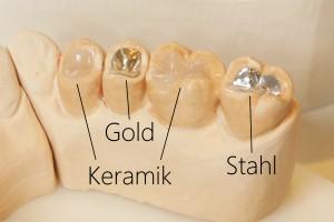 Vergleich Gold-Stahl-Keramikteilkrone